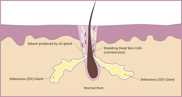 What Is Acne What Causes Pimples