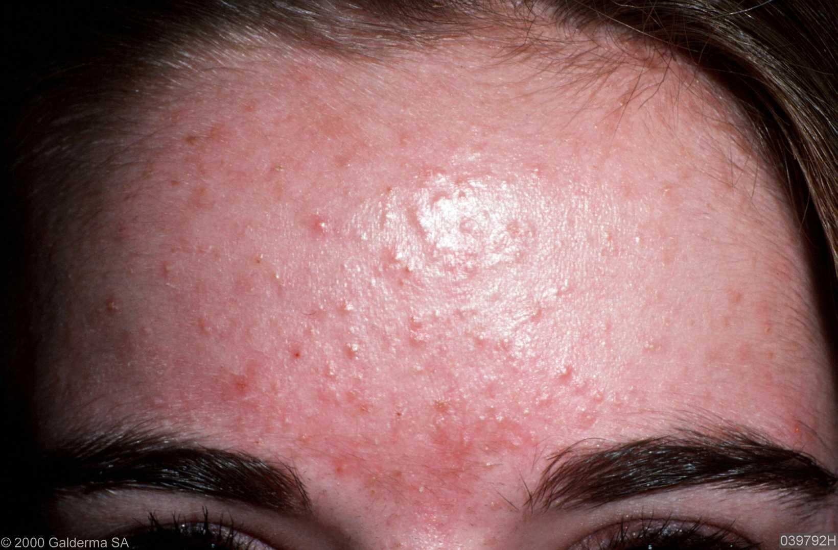 Malassezia (Pityrosporum) Folliculitis - PubMed Central (PMC)