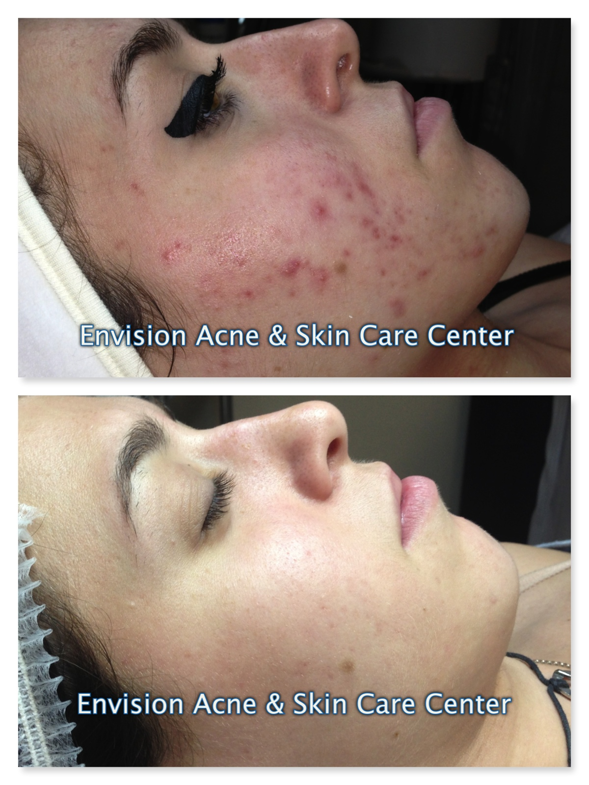 Before Amp After Skin Care Amp Acne Treatment Client Examples